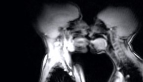 MRI Of Kissing And Sex Video